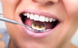 How Are Dentures Fitted?