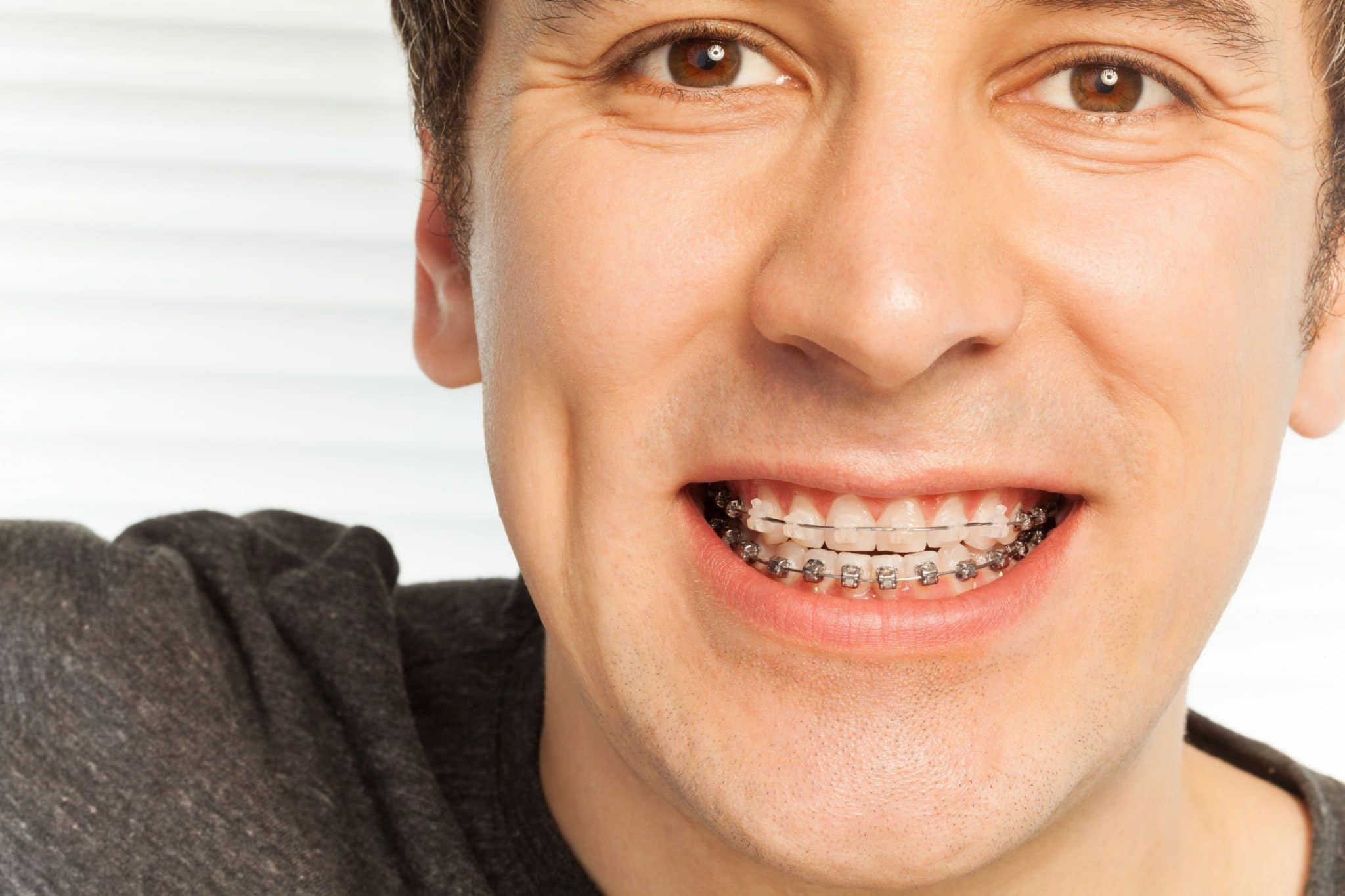 What Are the Advantages of Orthodontic Treatment?